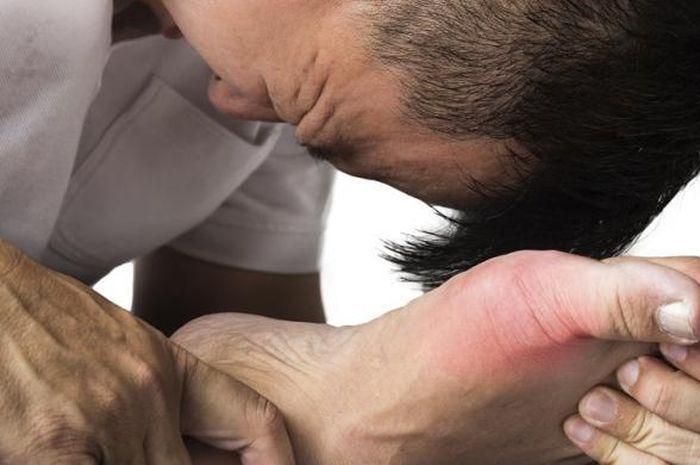 apakah penyakit asam urat bisa disembuhkan?