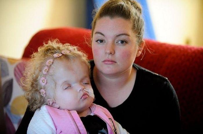 Idap Sindrom Dandy Walker, Kepala Bayi Ini Membesar 2 Kali Lipat