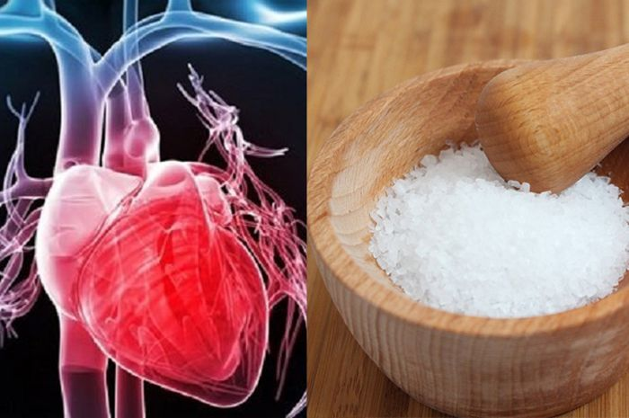 Sedikit asupan garam juga memengaruhi risiko penyakit jantung dan stroke