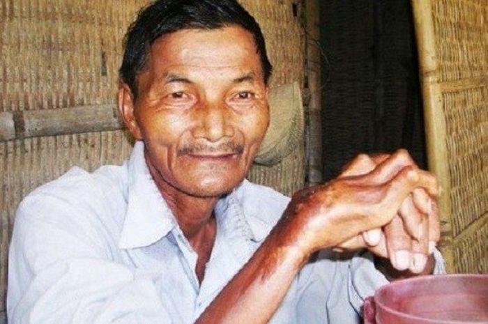 Thai Ngoc adalah seorang pria yang mengaku tak bisa tidur selama 47 tahun