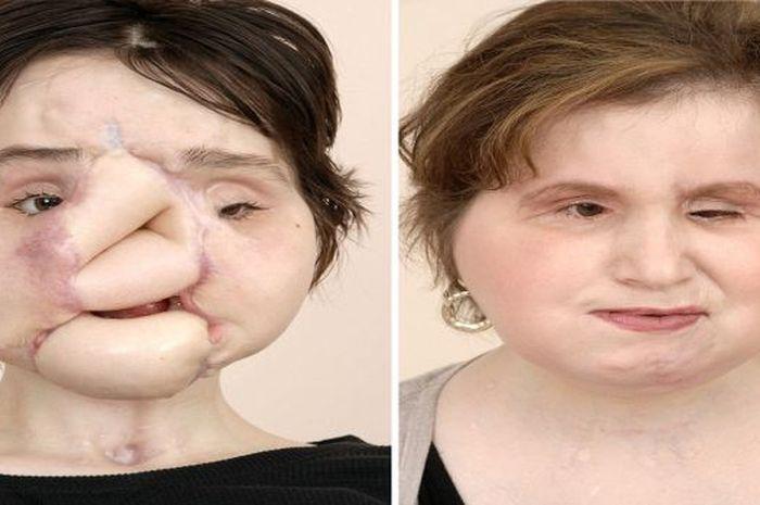 Katie sebelum dan setelah transplantasi wajah