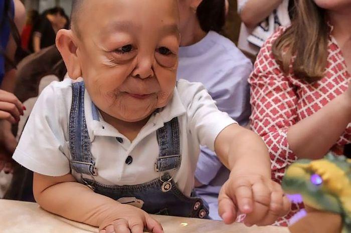 Karena Penyakit Langka, Wajah Anak 6 Tahun Ini Tampak Jauh Lebih Tua, Begini Kisahnya!