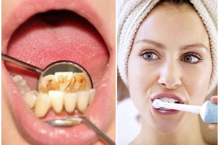 Obat kumur alami untuk menghilangkan plak gigi
