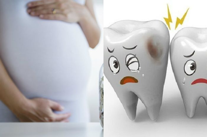 Sakit gigi saat hamil