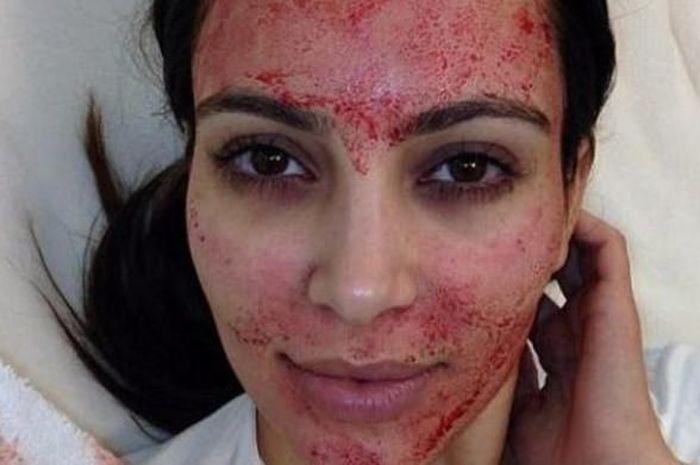 Kim kardashian sedang melakukan Vampire Facial