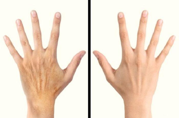Rahasia untuk membuat kulit tangan tampak lebih muda