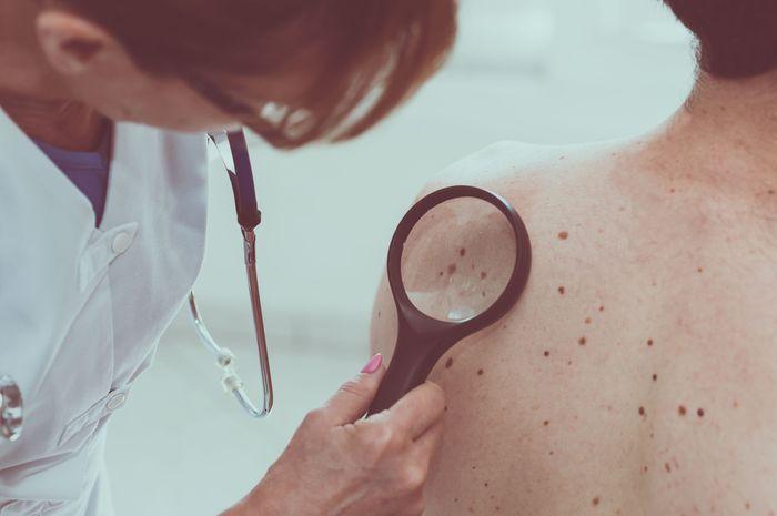Kini ditemukan obat untuk menyembuhkan kanker kulit melanoma
