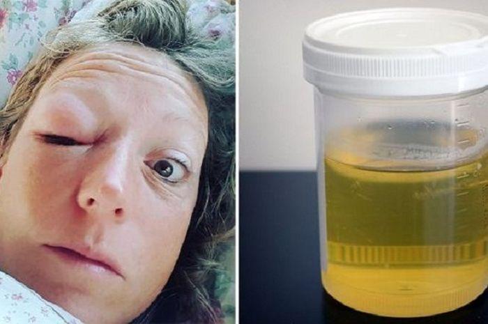 Sulit Dipercaya, Wanita Ini Buktikan Penyakitnya Sembuh Setelah Rutin Minum Urinnya Sendiri
