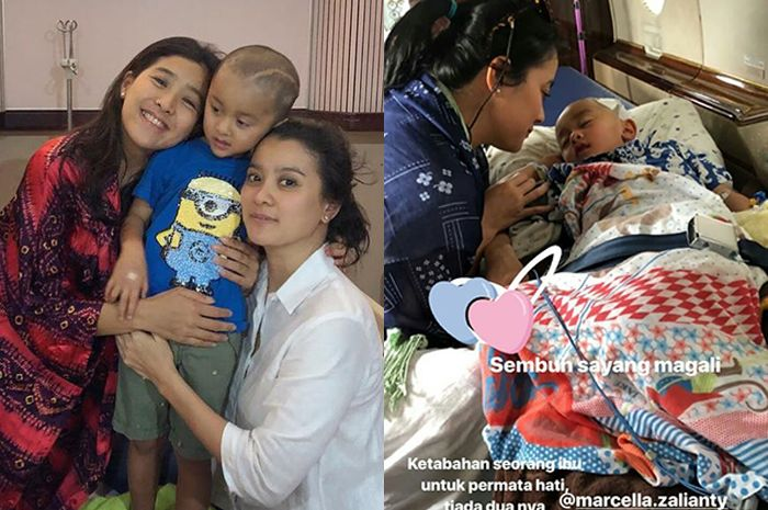 Setelah 2 Kali Operasi Tumor Otak, Begini Kondisi Terbaru Putra Marcella Zalianty