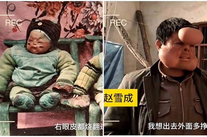 Zhao saat masih bayi dan sudah dewasa namun belum dioperasi