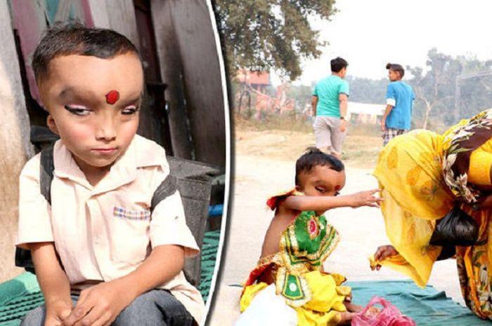 Prashu bocah India yang dianggap titisa dewa