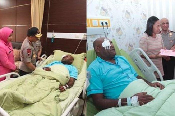 Panah yang tertancap di mata polisi Papua telah berhasil diangkat