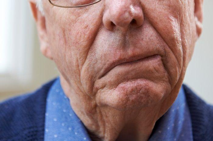 Terapi pengobatan stroke yang memakan banyak biaya