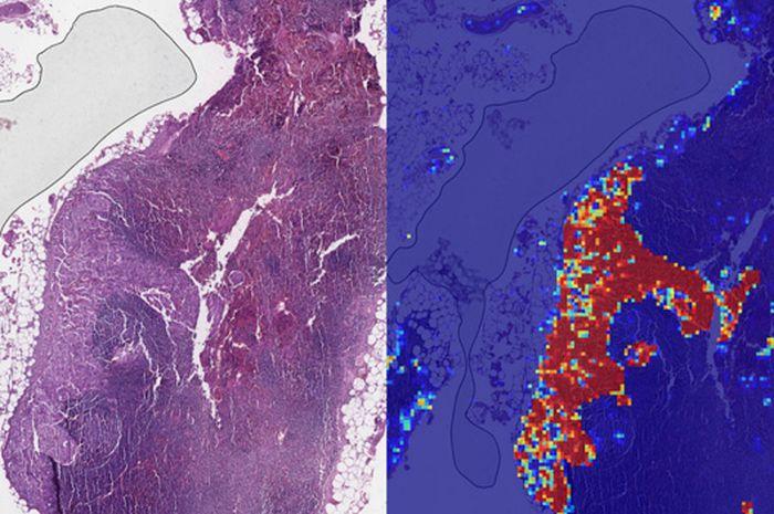 Google Lebih Pandai dari Manusia dalam Deteksi Kanker Payudara
