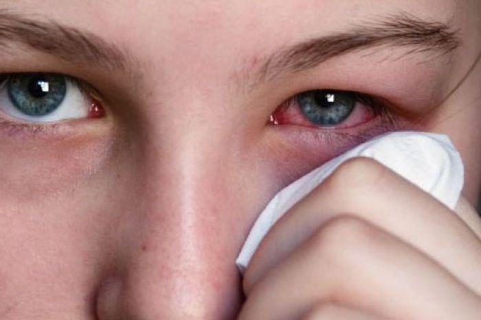 Penyebab mata memerah.