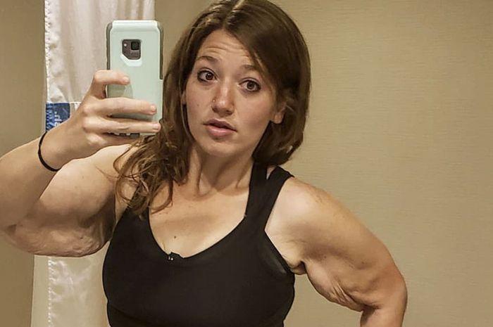 Lexi Reed berhasil turunkan berat badan, tapi justru menderita dengan kulitnya