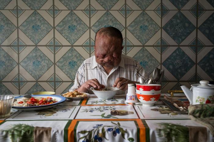 Berik Syzdykov lahir cacat karena ibunya saat hamil terpapar radiasi.