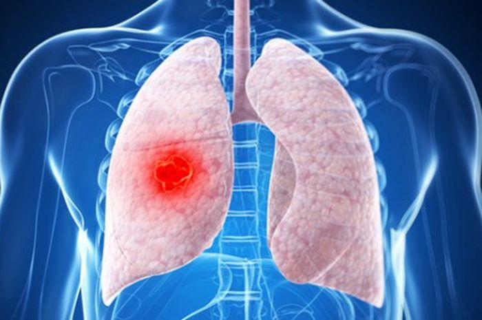 Kanker paru-paru sembuh tanpa operasi