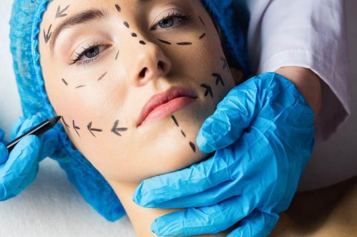 Prosedur dan risiko komplikasi operasi plastik face lift