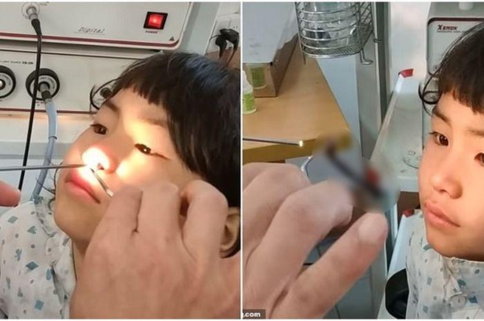 Dokter temukan hewan mengerikan ini di hidung gadis kecil