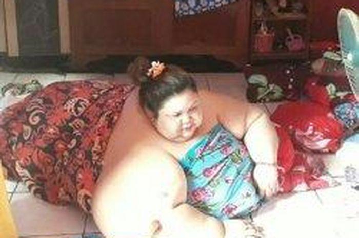 Gara-gara Hobi Ngemil, Titi Wati Berbobot 350 kg Hingga Dijuluki Wanita Tergemuk di Kalimantan Tenga
