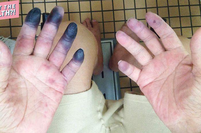 Jari tangan dan kaki kakek 84 tahun Ini menghitam.