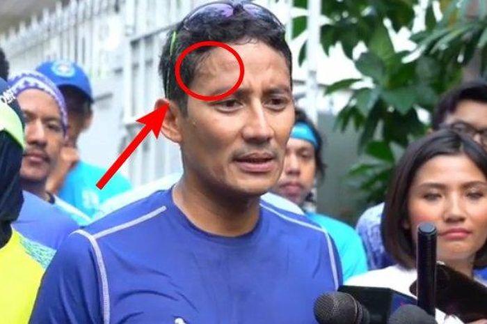 Urat dahi Sandiaga Uno dinilai netizen menyerupai lafaz nama Allah.