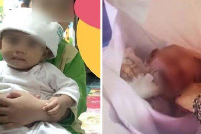 Sedang Dirawat Oleh Pengasuh, Bayi Berusia 7 Bulan Ini Meninggal dengan Cedera Kepala dan Pendarahan Dalam