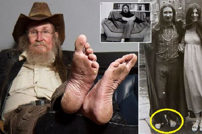 Pete Mckenzie, 69, better known as Pete the Feet, who hasn't worn shoes for 50 years in Moseley, Bir