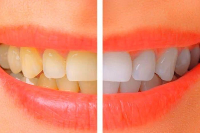 Gigi putih atau memutihkan gigi.