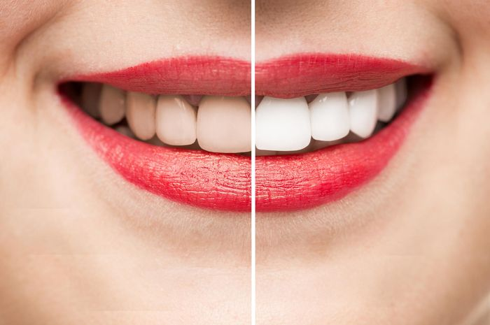 Mudah Banget Cari Tahu Cara Memutihkan Gigi Hanya Dalam 3 Hari