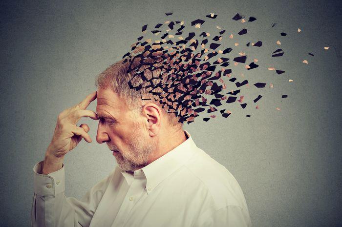 Ilustrasi Alzheimer.