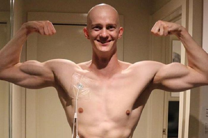 James Kearsley, pria berusia 22 tahun asal Tasmania, Australia dua kali berhasil mengalahkan penyakit kanker yang menyerangnya.