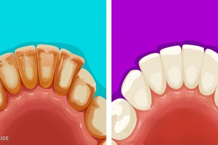 Cara menghilangkan karang gigi secara alami 5c1e539f74