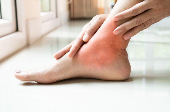 senam kaki pasien diabetes melitus
