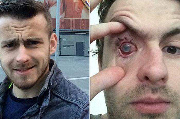 Nick Humphreys (29) mata kanannya mengalami buta karena tidak melepas softlens nya saat mandi