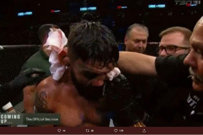 Petarung UFC Amerika Serikat, Mike Perry alami patah hidung terburuk sepanjang sejarah MMA ketika berlaga di Uruguay.