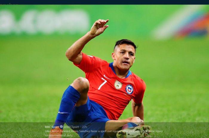 Alexis Sanchez alami cedera saat memperkuat timnas Cile.