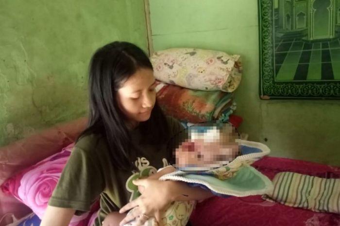 Dina Oktavia dicerai suami karena melahirkan Muhammad Pandhu Firmansyah dengan kondisi hidrosefalus.