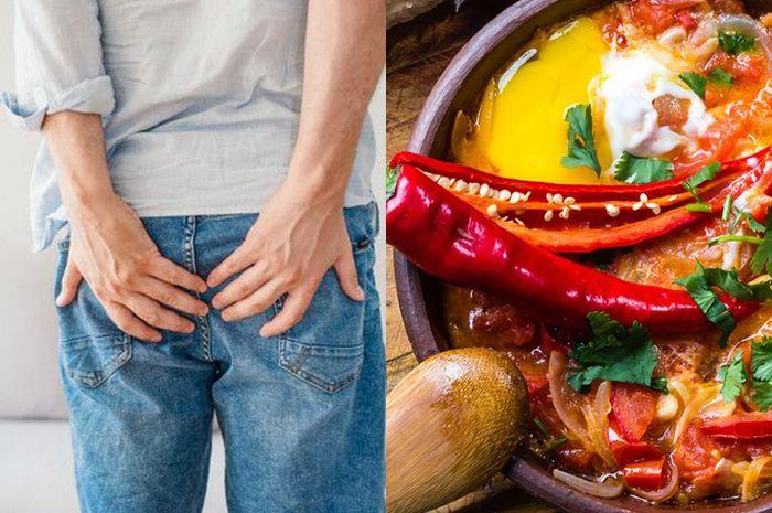 Makanan Penyebab Wasir Bukan Hanya Duduk Terlalu Lama 3 Makanan