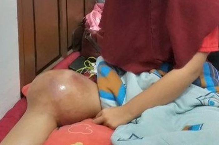Awalnya Jatuh Atlet Voli Ini Tak Sadar Idap Tumor Ganas Di Lutut Kanan Hingga Harus Diamputasi Semua Halaman Grid Health