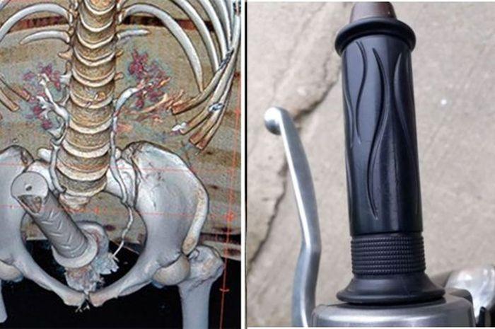 Awalnya Sakit Perut, Dokter Ternyata Temukan Stang Motor di Dalam Rahim, Wanita Ini Terancam!