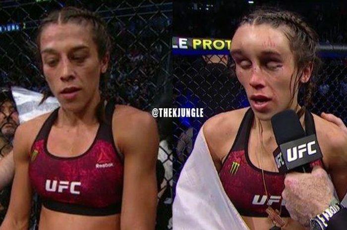 Wajah penyok jagoan UFC, Joanna Jedrzejczyk setelah bertarung melawan Zhang Weili.