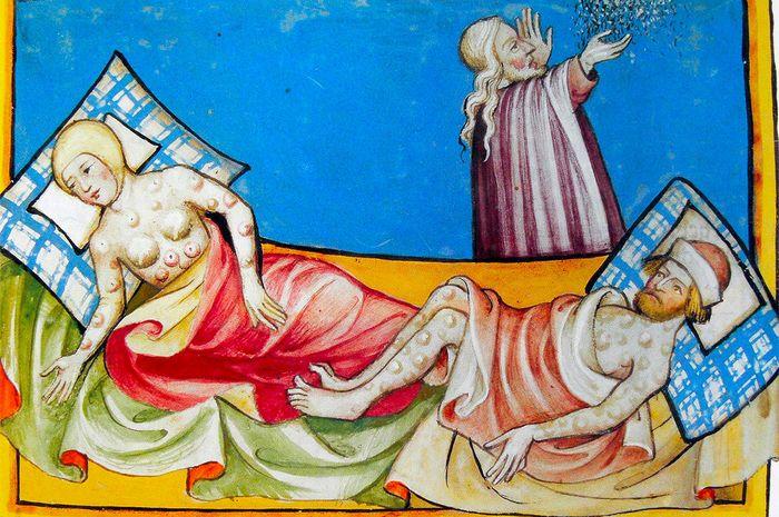 Miniatur Toggenburg Bible (Swiss) tahun 1411. Penyakit ini secara luas diyakini sebagai wabah, meskipun lokasi benjolan dan lepuh lebih konsisten dengan cacar.