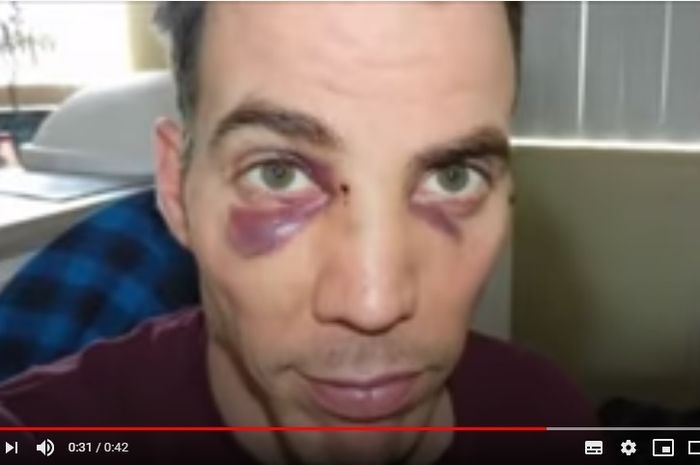 Pukulan Mike Tyson membuat wajah artis asal Inggris, Steve-O lebam