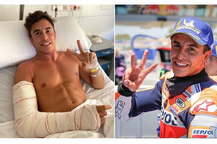 Marc Marquez merasa pulih lebih cepat dari perkiraan dan berniat segera kembali beraksi di MotoGP Andalusia 2020.