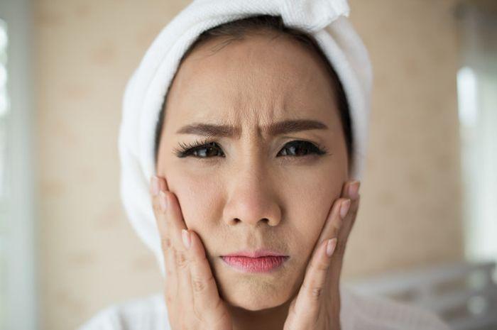 Masker Rumahan Untuk Mengurangi Muka Berminyak Yang Jerawat