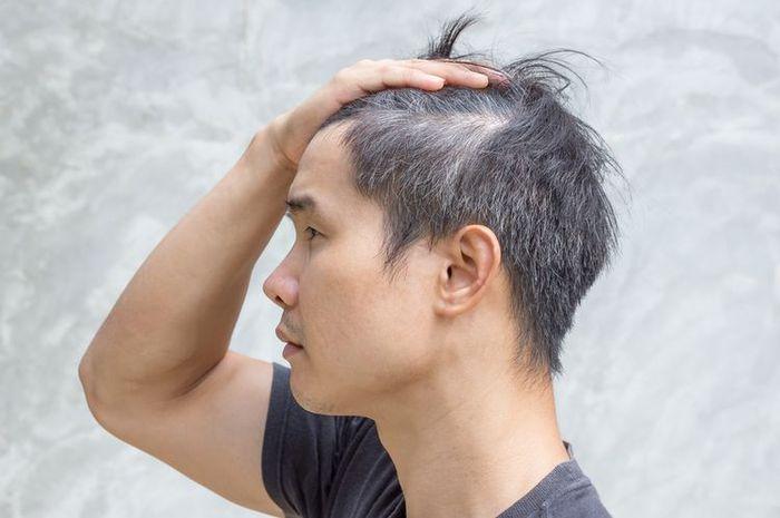 Ilustrasi saat rambut beruban yang disebabkan oleh stres