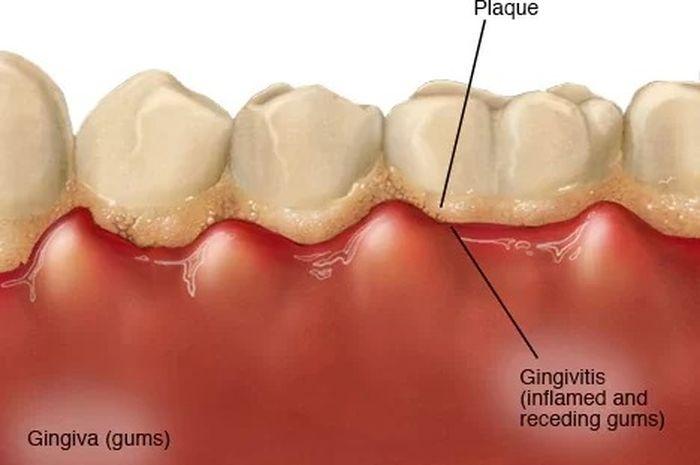 3 Cara Menghilangkan Plak Gigi Yang Menguning Secara Alami ...