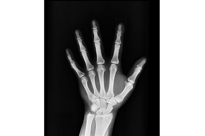 Sinar X-Ray, Sinar yang Bisa Menembus Benda Padat